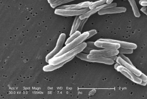 Elektronenmikroskopische Aufnahme der Tuberkelbakterien | Foto: Janice Carr (PHIL)